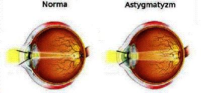 Astygmatyzm oka leczona przez okulistę w Rzeszowie